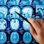 Neurología sin Neurólogo
