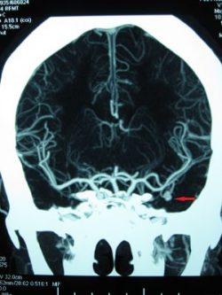 angio-tac-cerebral